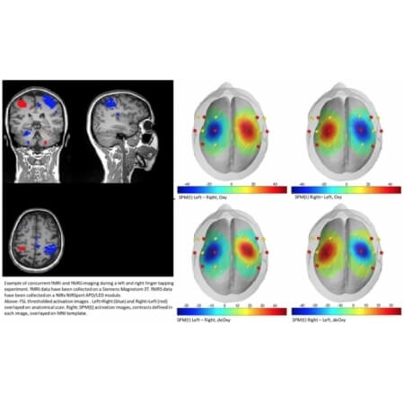 COMPARING FNIRS HEMODYNAMICS TO FMRI HEMODYNAMICS