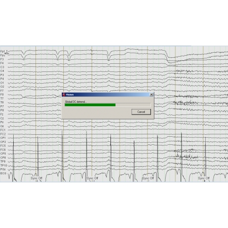 EEG DC Detrend Analyzer