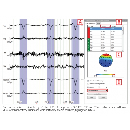EEG Ocular Correction ICA (based on ICA)