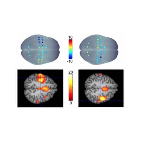 MULTIMODAL FNIRS-FMRI WITH NIRX SYSTEMS